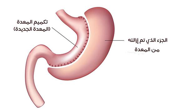 Obesity-surgery.11